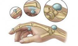 Что такое гигрома? Виды, причины и лечение гигромы