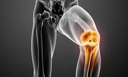 Лечение болезни Гоффа коленного сустава