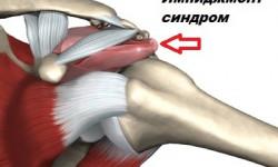 Что такое импинджмент синдром плечевого, голеностопного и тазобедренного суставов, и как его вылечить