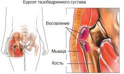 Бурсит тазобедренного сустава: симптомы его лечение