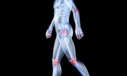 Американские ученые заявили о революции в лечении артрита