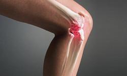 Синовит коленного сустава — симптомы болезни и ее лечение
