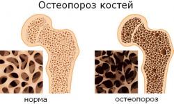 Обследование на остеопороз: алгоритм диагностики