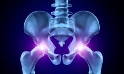 Артроз тазобедренного сустава (коксартроз). Определение группы инвалидности