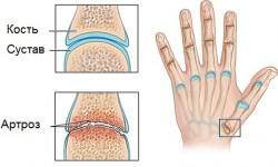 Определение и лечение артроза мелких суставов кистей рук