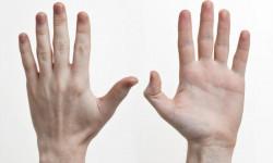 Строение кисти: пястно-фаланговый сустав, анатомия