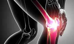 Причины, диагностика и лечение периартрита коленного сустава