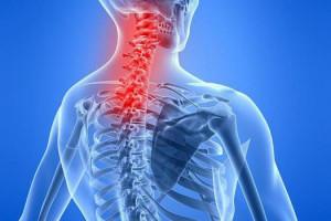 Миозит: симптомы и причины. Лечение миозита в домашних условиях