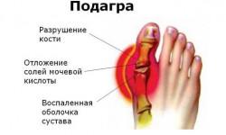Что такое подагра, ее проявления, лечение и профилактика