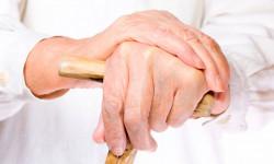 Что такое наросты на суставах рук?