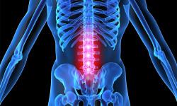 Остеохондроз поясничного отдела позвоночника: причины и лечение