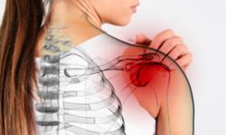 Комплекс упражнений при плечелопаточном периартрите доктора Попова