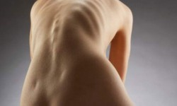 Степени кифосколиоза, лечение