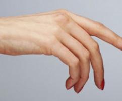 Как лечить воспаление суставов и артрит на пальцах рук?