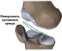 Препараты для лечения и восстановления суставов. Хондропротекторы
