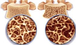 Бисфосфонаты при остеопорозе, их роль в лечении