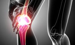 Тендинит коленного сустава: причины, диагностика и лечение