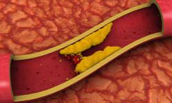 Избыток «хорошего» холестерина опасен для жизни
