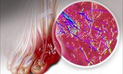 Подагра и мочевая кислота. Лекарственные средства, способствующие выведению мочевой кислоты