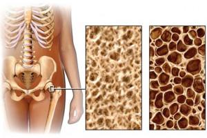 Чем опасен остеопороз и как с ним бороться