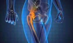 Лечение синовита тазобедренного сустава у детей и взрослых