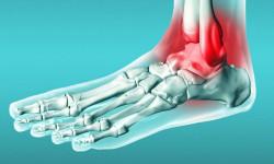 Лечение растяжения, разрыва и надрыва связок стопы