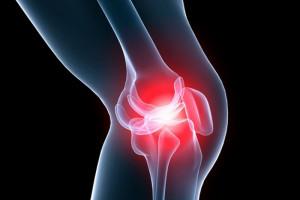 Как лечить гонартроз коленного сустава народными средствами?