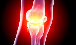 Рост уровня холестерина может привести к потере костной массы