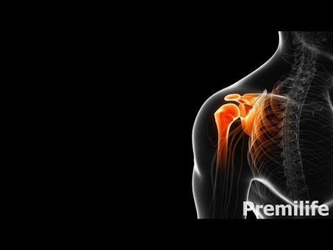 Кальцинирующий тендинит - Лечение и востановление - By Premilife