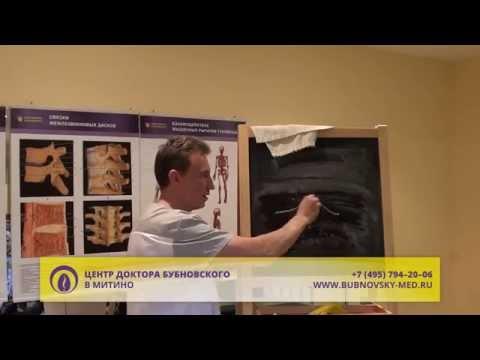 Плоскостопие и развитие артроза голеностопного сустава