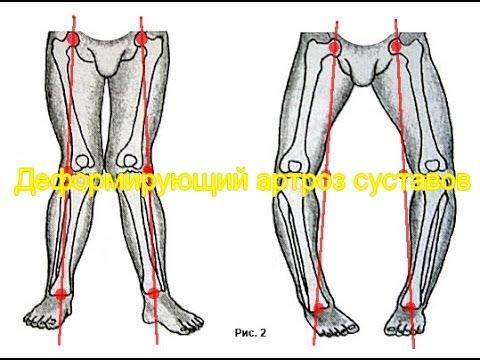 Деформирующий артроз суставов: лечение, профилактика. Как дают инвалидность.