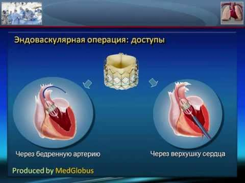 Стеноз аортального клапана: причины, диагностика, варианты лечения аортального стеноза
