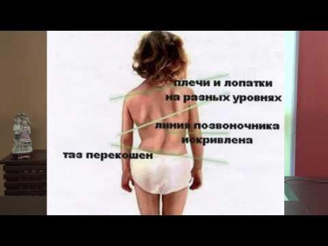 Профилактика заболеваний позвоночника: кифосколиоз. Советы родителям - Союз педиатров России.