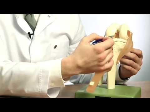 Строение коленного сустава. Повреждения мениска. Разрыв крестообразной связки. Гончаров Е.Н.