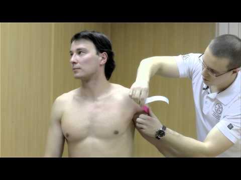 Кинезиотейпирование при импичмент-синдроме плечевого сустава.