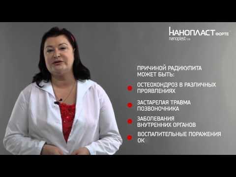 Радикулит: причины и лечение радикулита с НАНОПЛАСТ форте