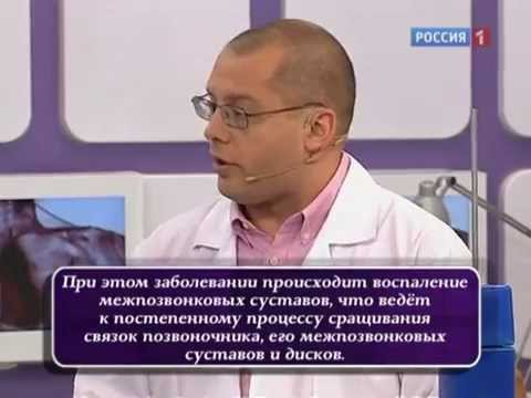 О главном - Болезнь Бехтерева