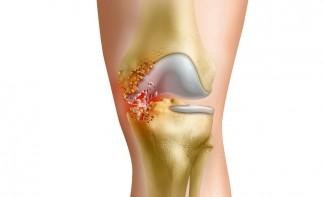 Гнойный артрит коленного сустава лечение