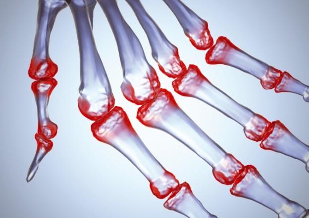 Воспаление суставов – заболевания, симптомы и лечение воспаления суставов