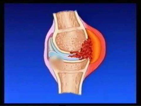 Ювенильный хронический артрит