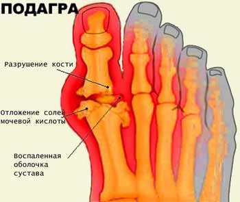 Подагрический артрит (подагра): признаки, симптомы и лечение