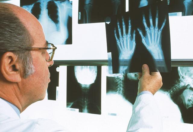 Новейшие методы лечения ревматоидного артрита