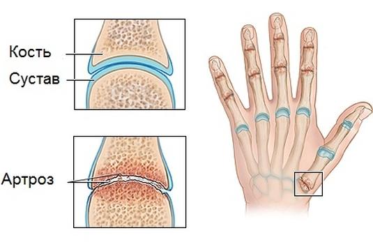 Посттравматический артроз голеностопного сустава симптомы и лечение