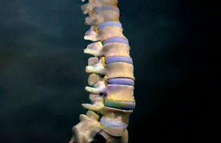 Изображение - Артроз дугоотросчатых суставов реберно позвоночных сочленений artroz-reberno-pozvonochniyj-450x292