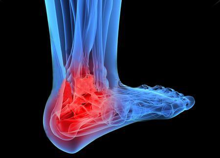 артрит артроз плечевого сустава и его лечение