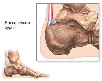 Что такое бурсит пятки Причины симптомы и лечение воспаления