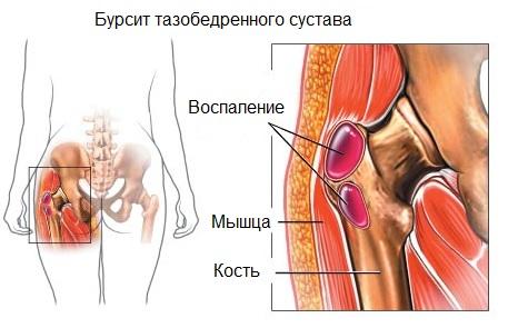 Бурсит тазобедренного сустава - симптомы, лечение