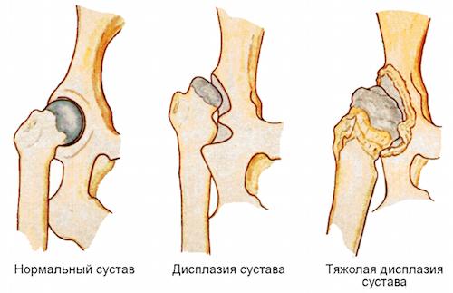 Дисплазия соединительной ткани - симптомы, лечение