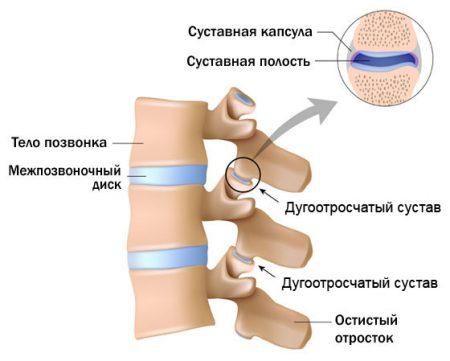 Изображение - Артроз дугоотросчатых суставов реберно позвоночных сочленений duga-joints-illustration-450x361
