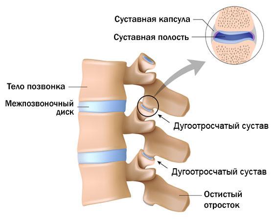 Артрит артроз остеопороз симптомы и лечение
